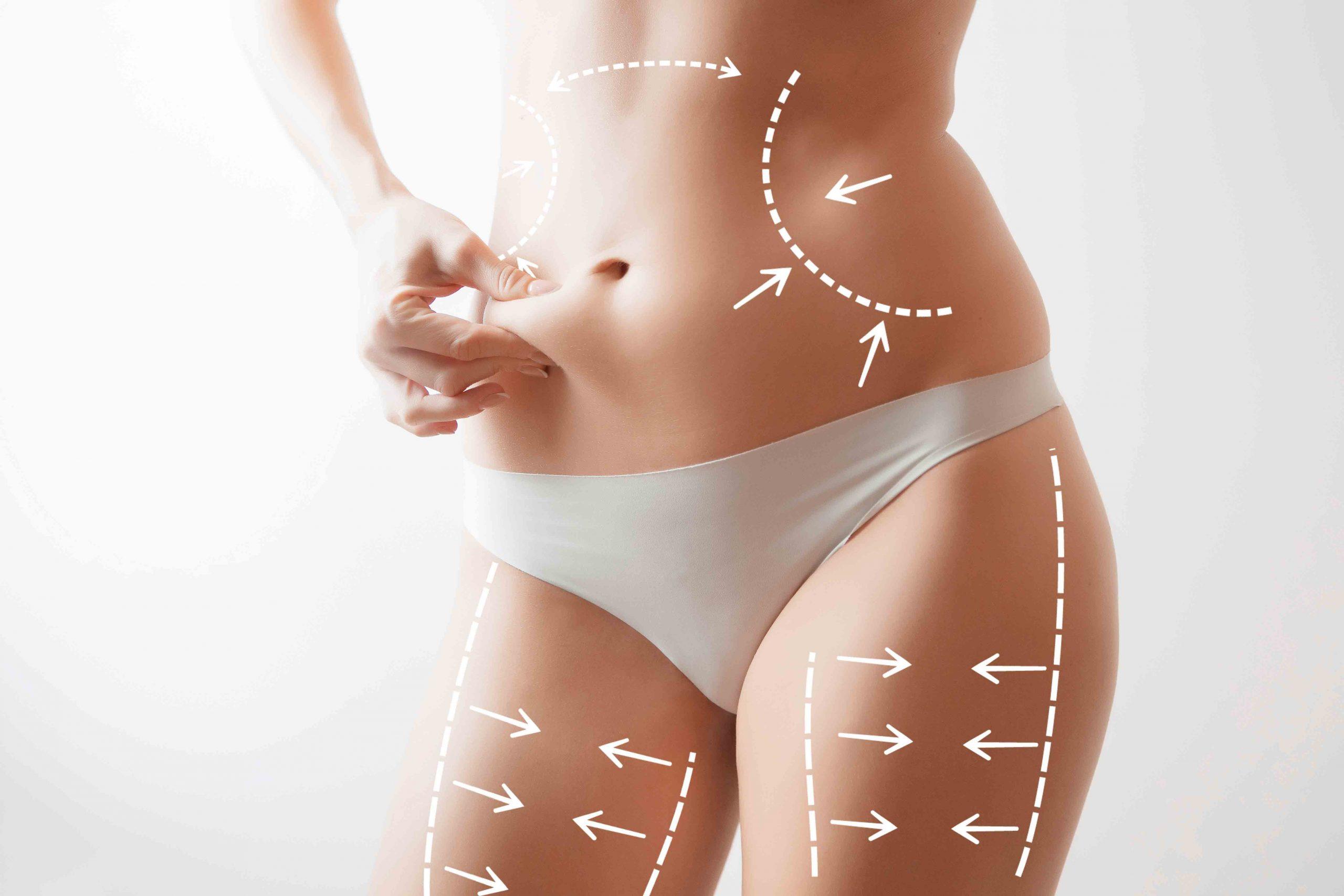 Fettabsaugung (Liposuction) - effektiv, schmerzfrei I Dr. Zierhofer-Tonar, 1010 Wien