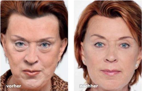 Effektive Augenlidstraffung, Vergleich vorher nachher, Dr. Zierhofer-Tonar Wien