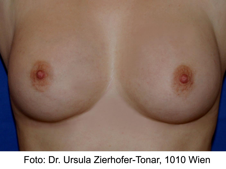 Dr. Zierhofer-Tonar, Wien I Foto Brustaufbau mit Eigenfett – nachher